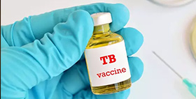 RESEARCHER DISCUSSES URGENT NEED FOR A NEW TB VACCINE
